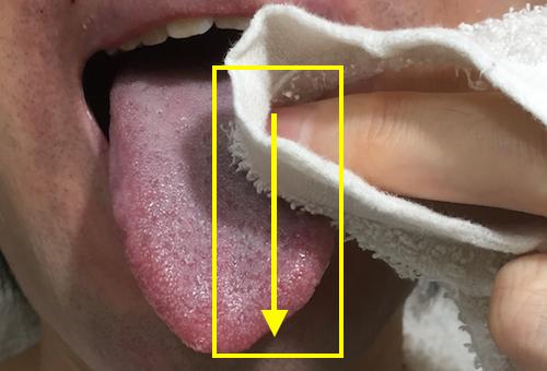 口臭舌苔取り方簡単除去白色ぜったい03