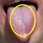 口臭の大敵・舌苔の取り方!タオルで簡単除去!舌を傷つけない(白色・ぜったい)