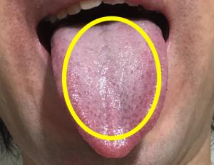 口臭舌苔取り方簡単除去白色ぜったい00